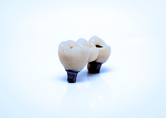 implantat-protetik